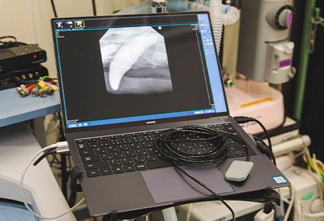 歯科用レントゲン撮影機